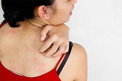 Quali sono i tessuti più indicati per le pelli sensibili?